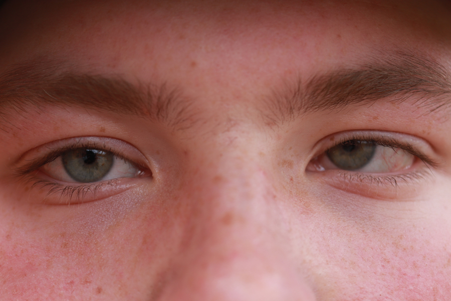 Looking at the camera, sophomore Austin Barker shows his blind eye. Barker was diagnosed with cancer in his left eye, and that lead him to be blind in his left eye. Barker luckily lived, and the only thing his left eye does is turn different colors in different lightings.